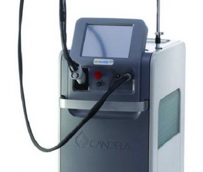 Лазеры Candela